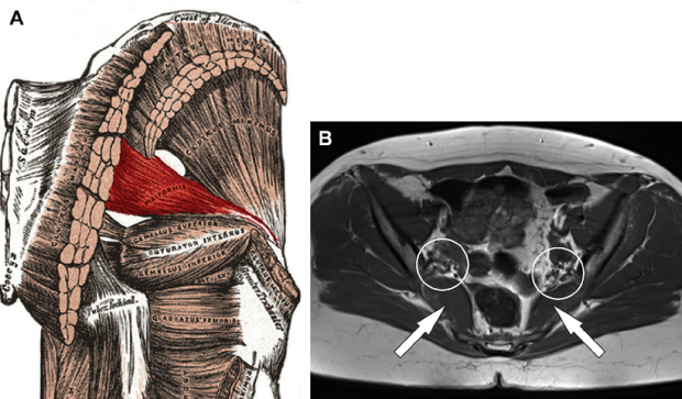 33-year-old Woman with Piriformis Syndrome - Neurography ... |Piriformis Muscle Mri